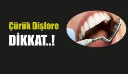 Diş Çürükleri Öllümcül Olabiliyor !